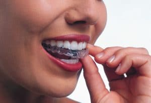 woman inserting clear aligners into mouth